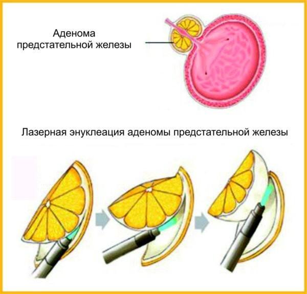 Суть метода holep-1