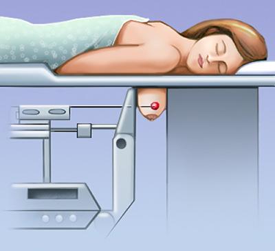 Маммография с биопсийной приставкой