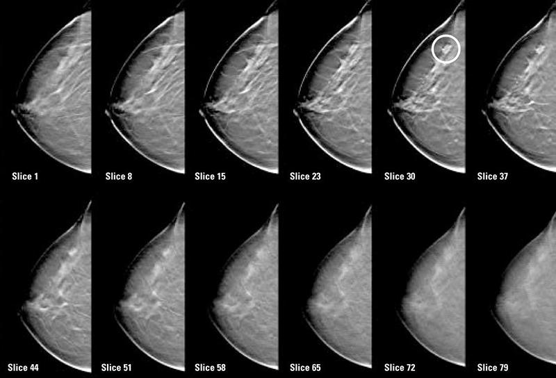 Маммография с томосинтезом