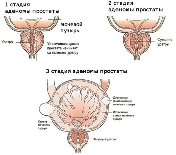 diametro prostata