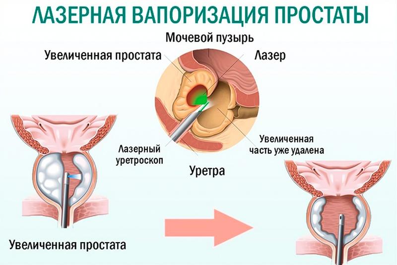 A prosztata adenoma átkerül a partnerbe